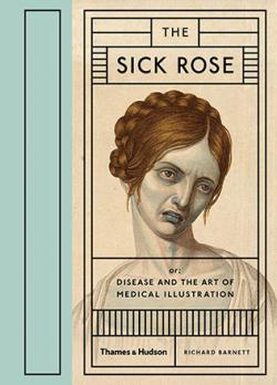 The Sick Rose: Or: Disease and the Art of Medical Illustration